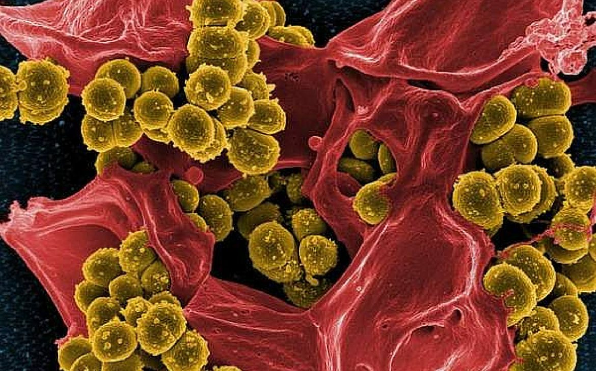 image of bacteria which cause toxic shock syndrome